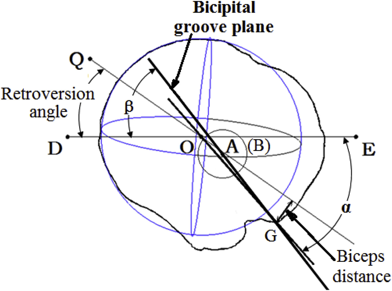 Analyzing on the location of the bicipital groove for ...